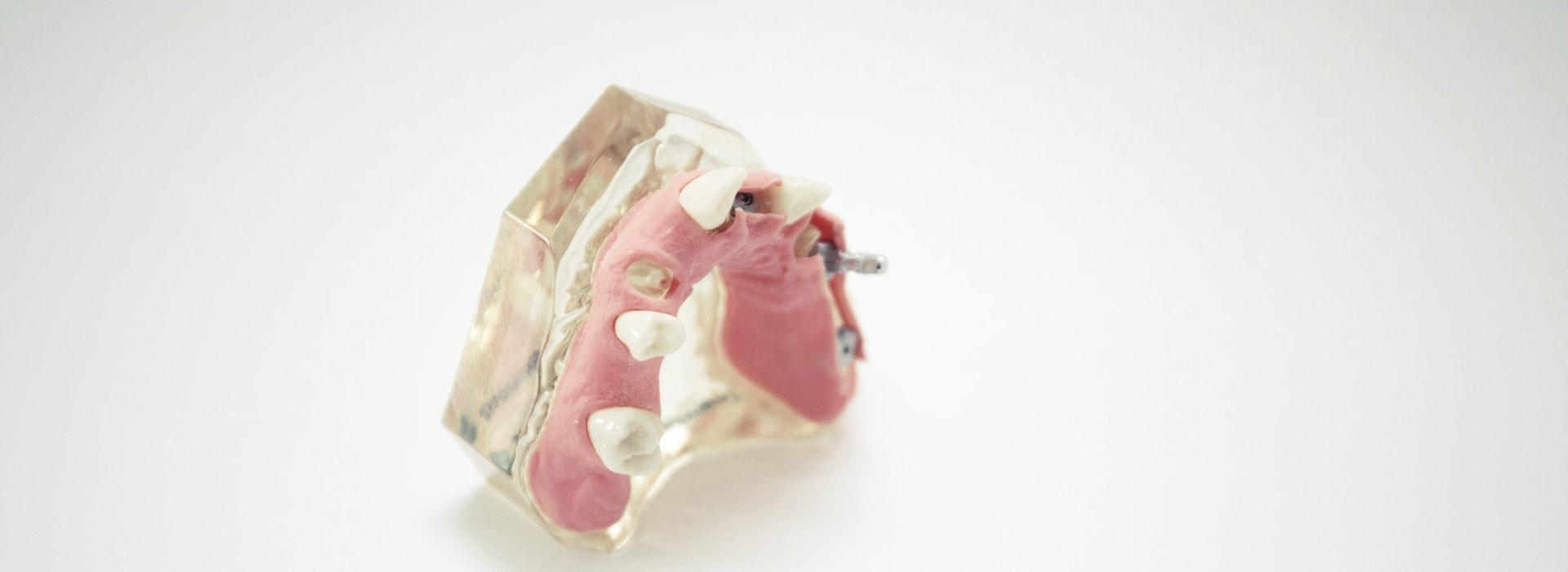 Notfall - Zahnunfall